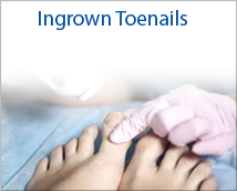 Ingrown Tonails